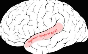 Picture of brain highlighting the superior temporal gyrus